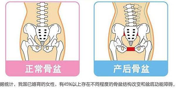 产后骨盆修复有必要吗